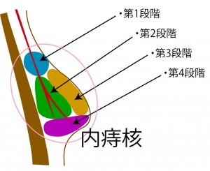 四段階注射法